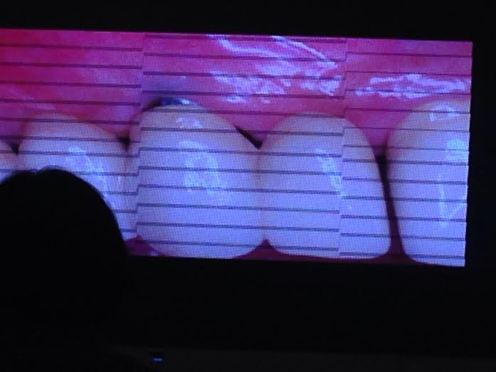 Cắm Implant bị lộ phần kim loại đen