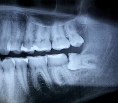 Nhổ răng khôn bị sưng và máu ra nhiều