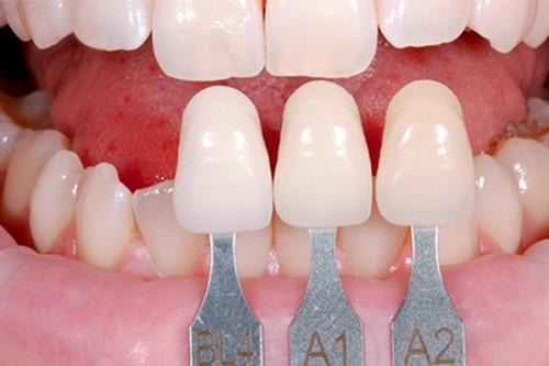 Vấn đề về trồng răng sứ