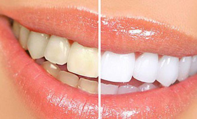 Vấn đề tẩy trắng răng