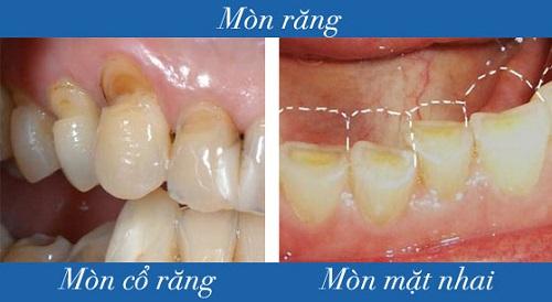 Vấn đề mòn răng khi lớn tuổi