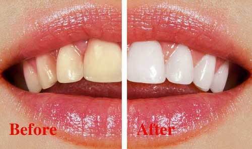 Tẩy trắng răng với trung tâm nha khoa uy tín Thiện Tâm