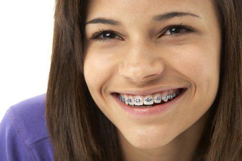 Các phương pháp niềng răng hiệu quả