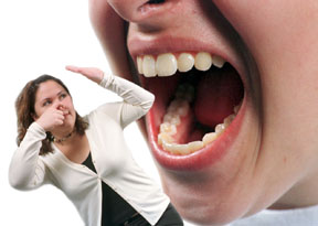 Những lý do khiến bạn bị hôi miệng