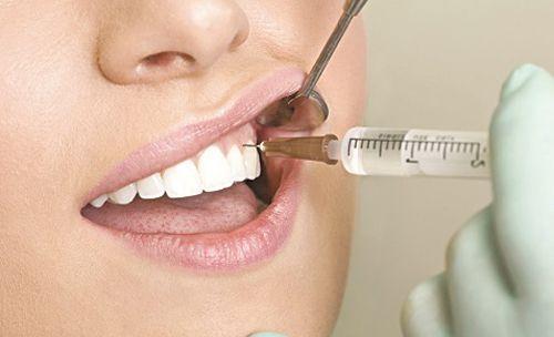Độ nguy hiểm và triệu chứng của viêm tủy răng