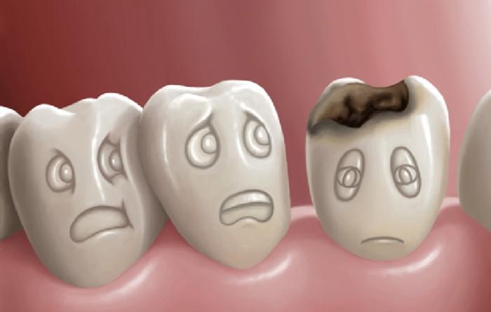Sâu răng là do thiếu chất! Thiếu chất gì dẫn đến sâu răng?