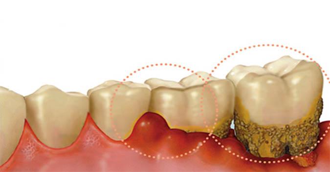 Hậu quả của việc lười đánh răng nghiêm trọng hơn ta tưởng rất nhiều