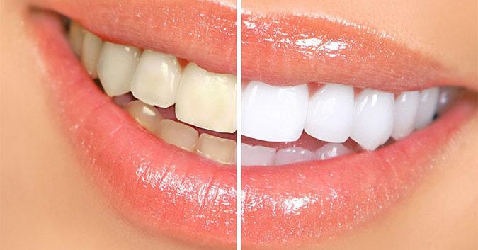 7 bí quyết giúp bạn có nụ cười tỏa nắng