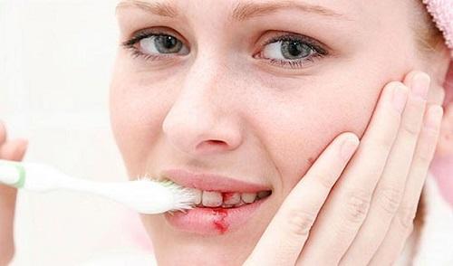 Cảnh báo nhiều căn bệnh nguy hiểm với căn bệnh chảy máu chân răng