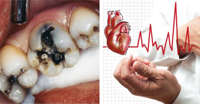 Rất có thể bạn còn bị nhiều vấn đề nguy hiểm khác, một khi răng miệng gặp vấn đề